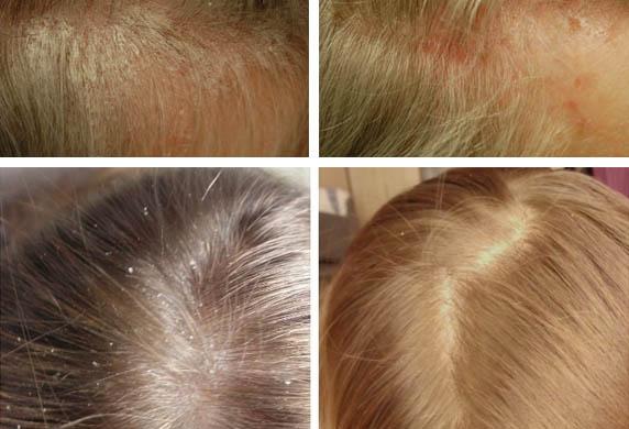 До и после лечения себореи