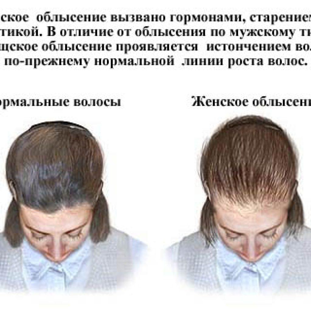 Признаки женской алопеции