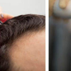 Ионофорез и дарсонвализация для роста волос