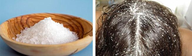Лечение волос солью