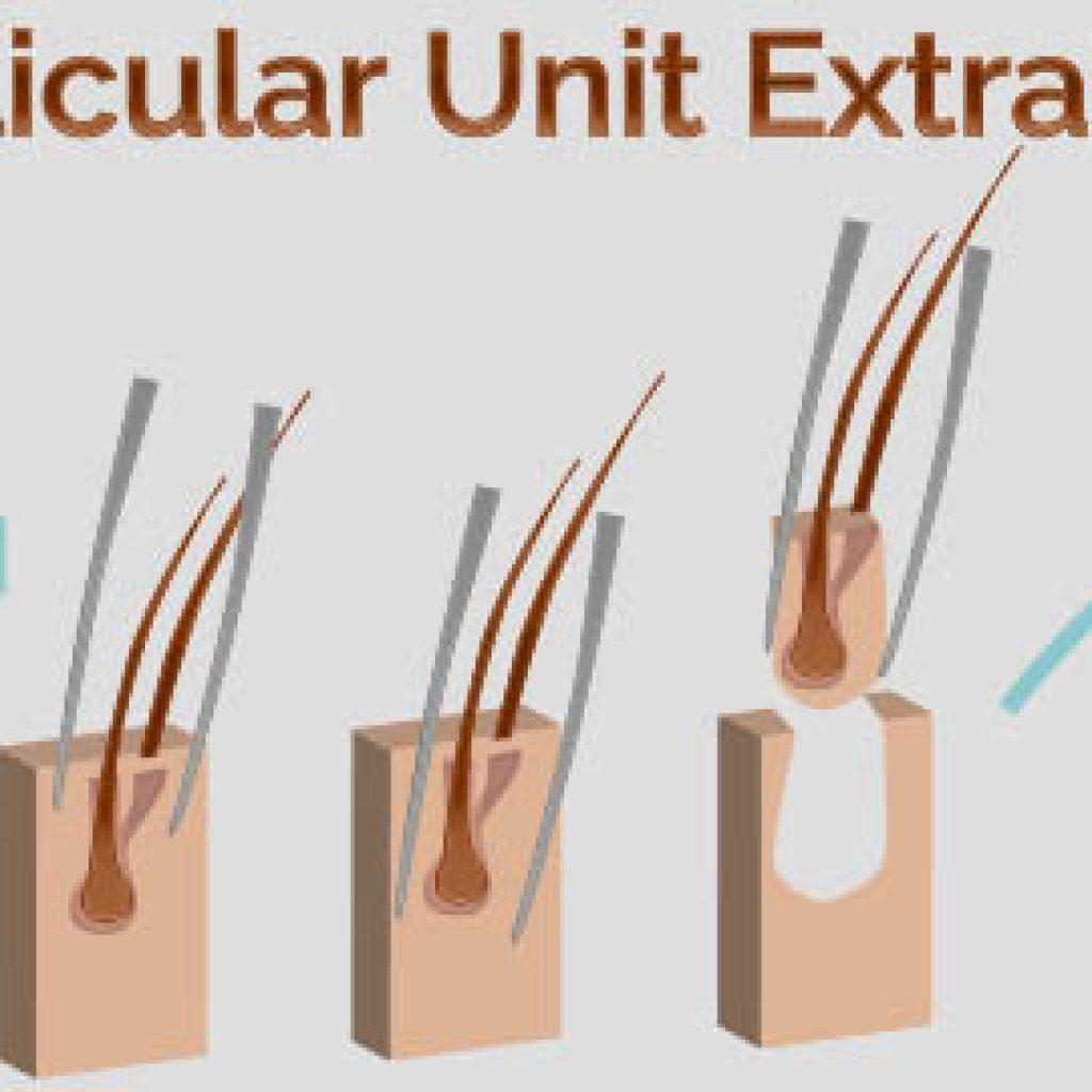 Методика Hand Follicul Extraction