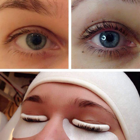 Проведение процедуры Botox