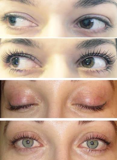 Результат использования Botox