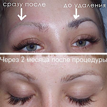 До и после удаления пигмента