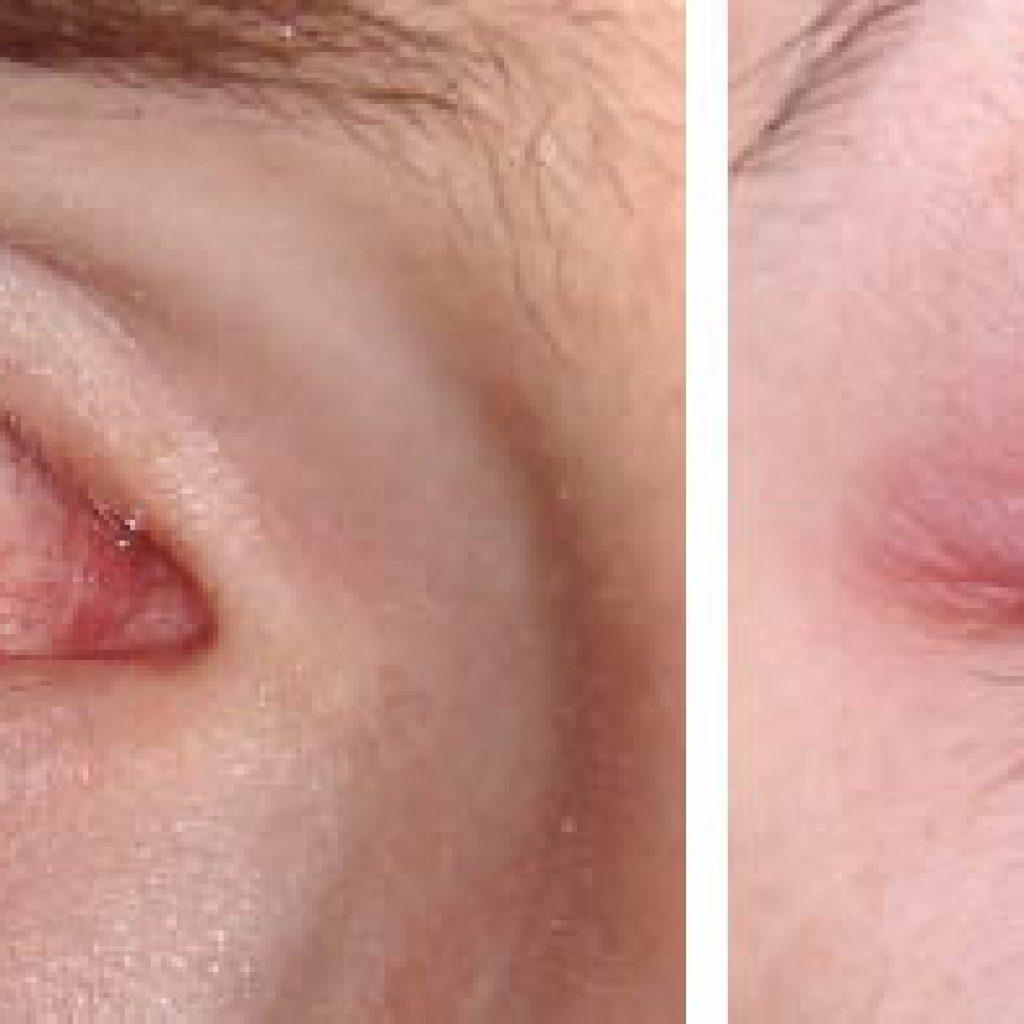 Покраснение глаз после процедуры наращивания