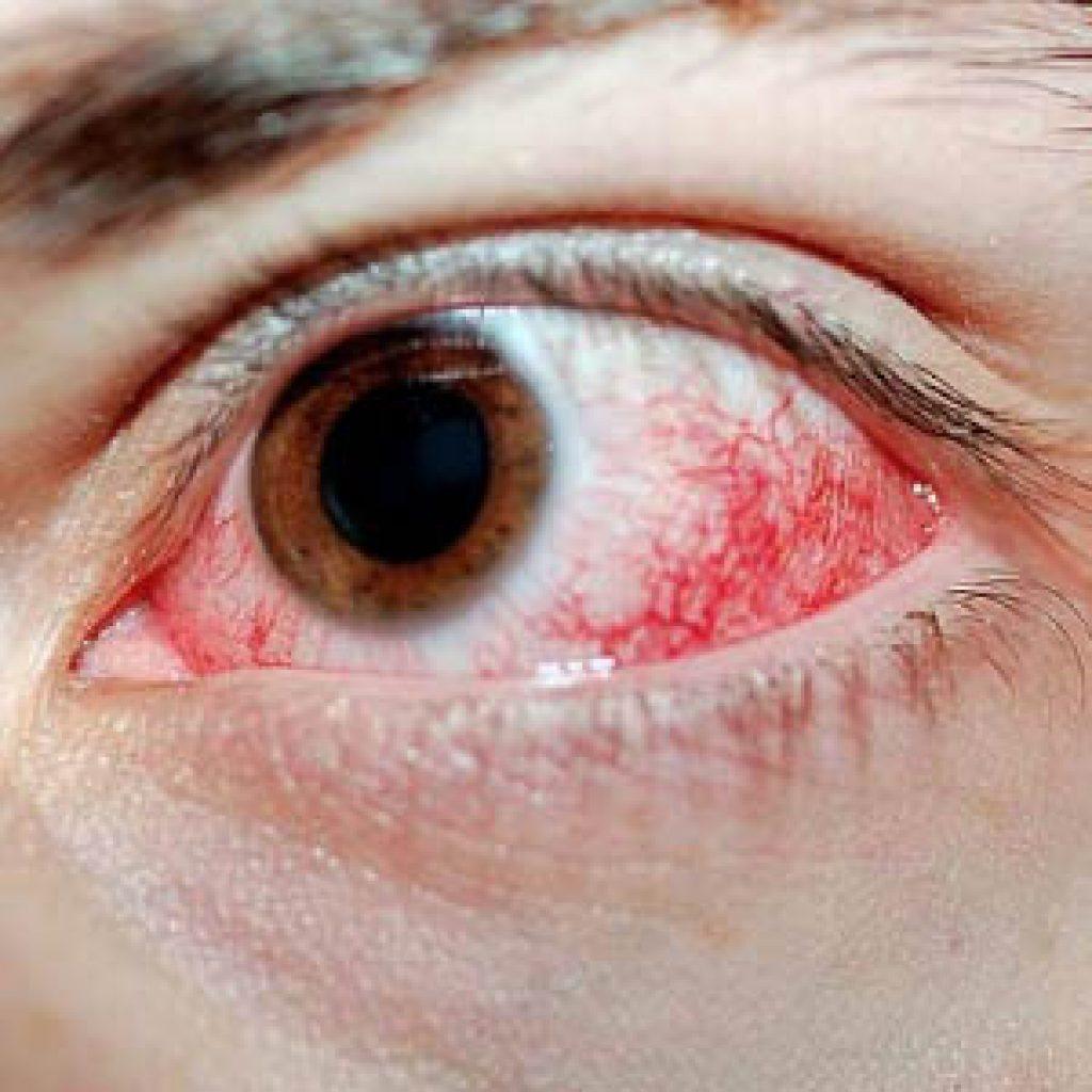 Почему после наращивания краснеют глаза