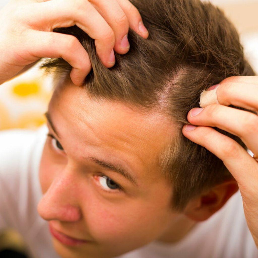 у подростков выпадают волосы