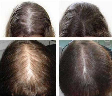 Фото до и после лечения