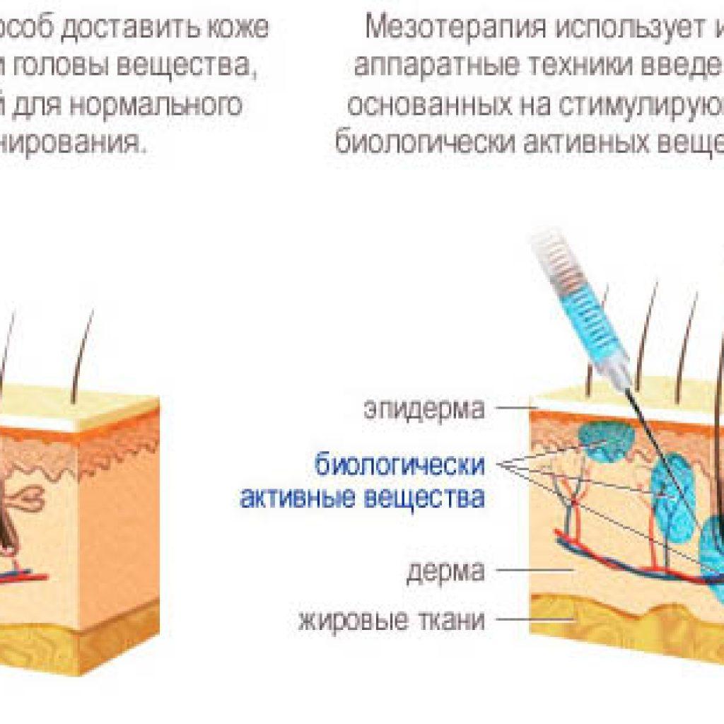 Что такое мезоинъекции