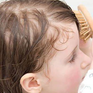 Как вывести перхоть у детей? Обзор способов лечения