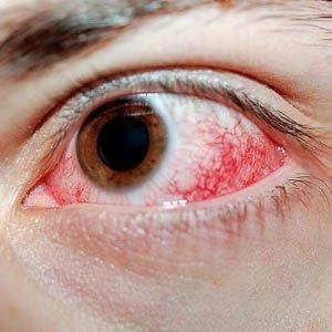 Почему после наращивания ресничек краснеют глаза?